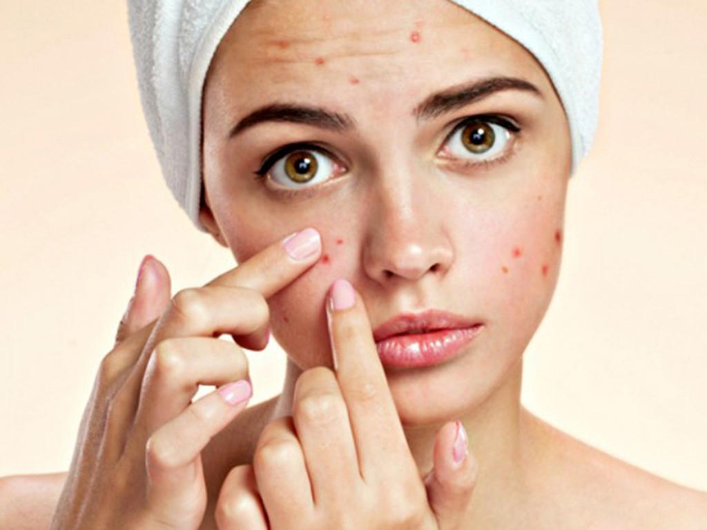 Kem trị mụn ngày đêm – 24h – Face Care Cream
